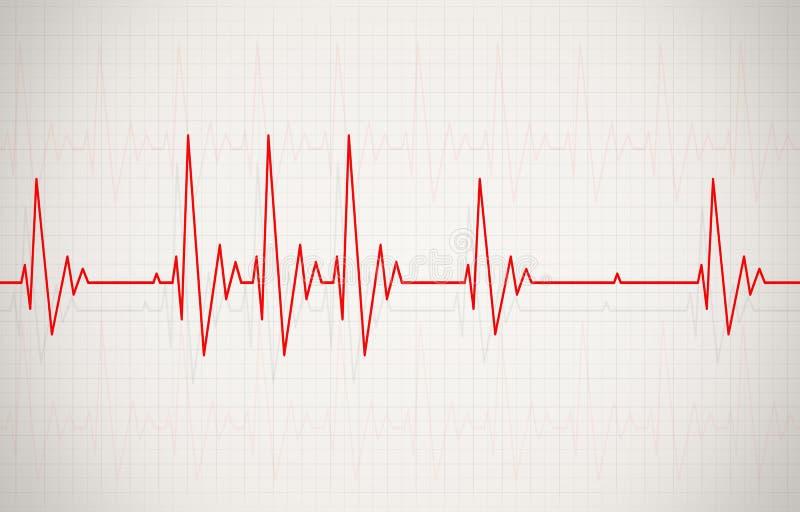 Onregelmatige Hartslagillustratie stock illustratie
