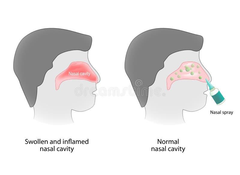 Ontsteking van de neusholte en gezonde neusholte royalty-vrije illustratie