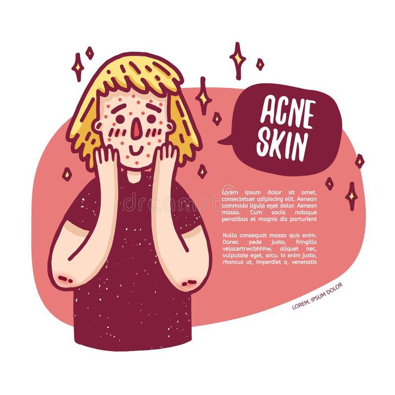 Ontwerpbanner met leuk tienermeisje over probleemhuid Jonge vrouw met acne Malplaatjeinfographics over dermatologica vector illustratie