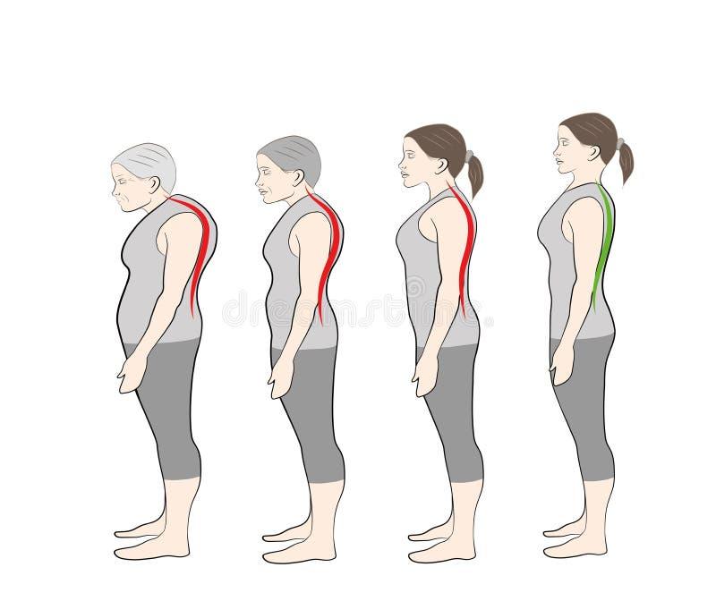 Ontwikkeling van een gebogen houding met leeftijd, het tonen vector illustratie
