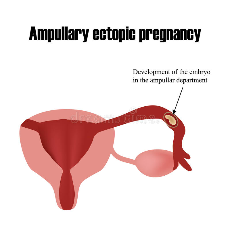 Ontwikkeling van het embryo in de ampullaire afdeling stock illustratie