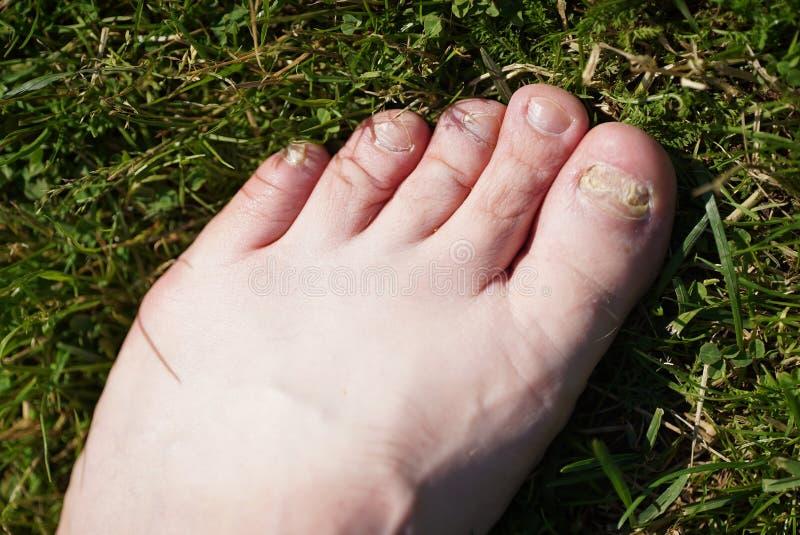 Onychomycosis 脚钉子的真菌感染  免版税图库摄影