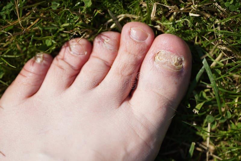 Onychomycosis Infection fongique des clous des pieds photographie stock libre de droits