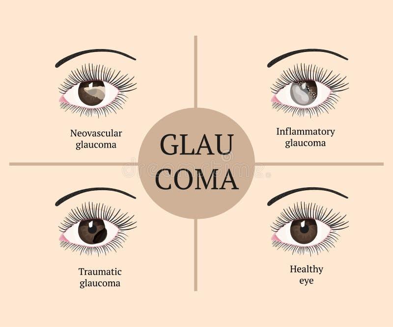Oogziekte De illustratie van de oftalmologiegezondheid stock illustratie