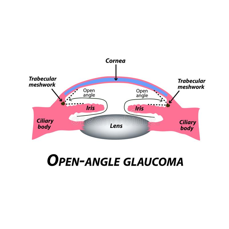 Open-angle glaucoma. A common type of glaucoma. The anatomical structure of the eye. Infographics. Vector illustration royalty free illustration