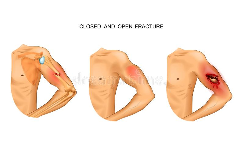 Open and closed fracture vector illustration