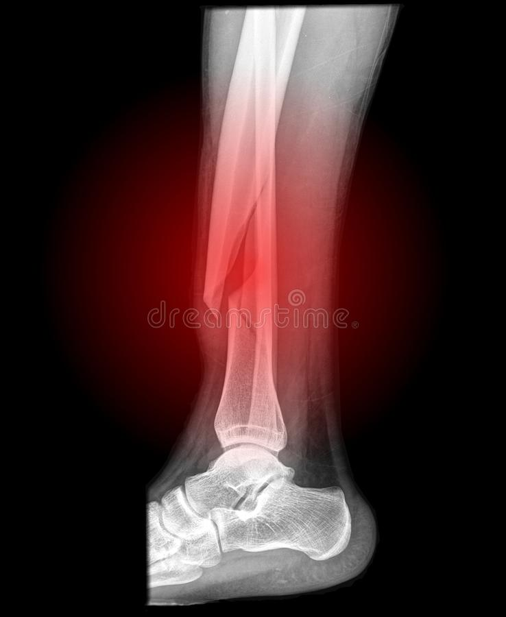 Open fracture of the leg with dislocation. Image of a broken lower leg, fracture of the tibia and fibula in the distal part of the lower leg. massive dislocation royalty free illustration