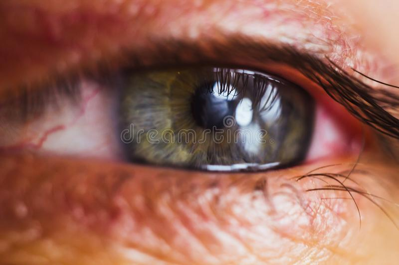 Open human eye with bright red arteries close up. irritation and redness of the eyeball. pupils, iris, eyelashes in macro. vision. Problems stock image
