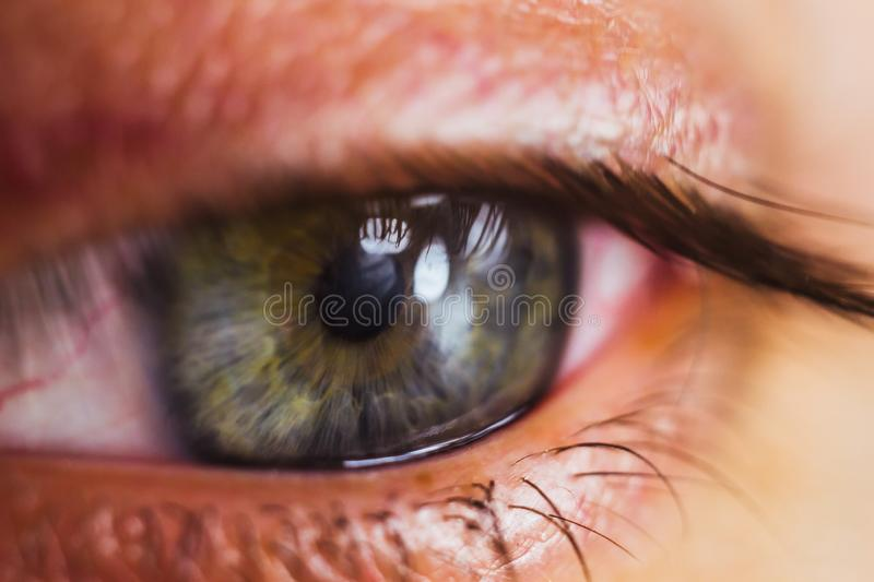Open human eye with bright red arteries close up. irritation and redness of the eyeball. pupils, iris, eyelashes in macro. vision. Problems stock photos
