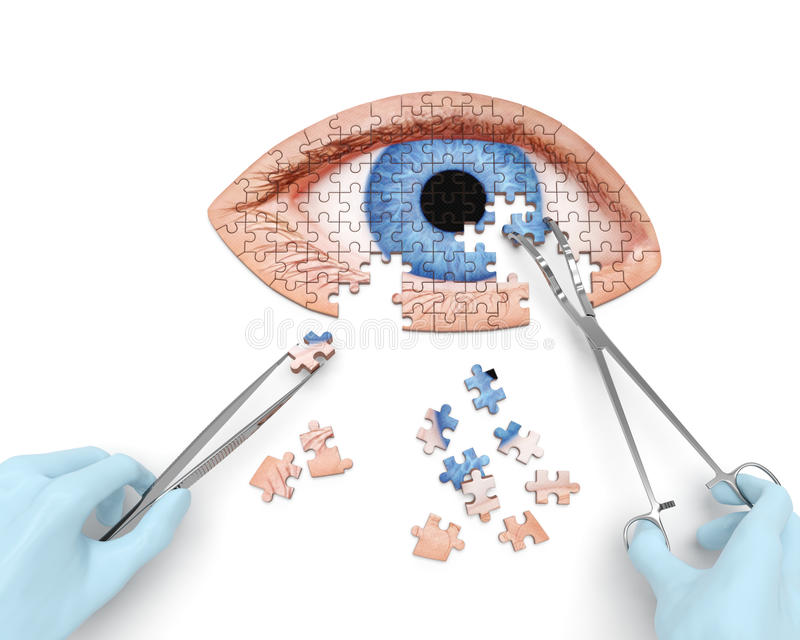Operação do olho ilustração stock