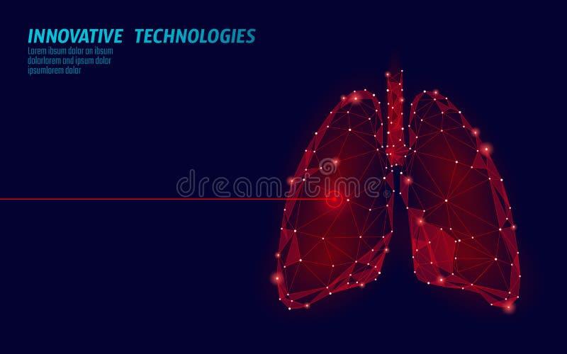 Operação humana da cirurgia do laser dos pulmões baixo poli Área dolorosa do tratamento da droga da doença da medicina Triângulos ilustração do vetor