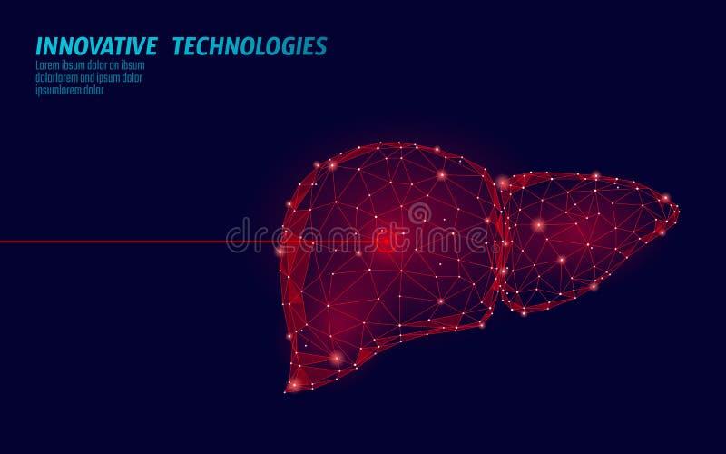 Operação humana da cirurgia do laser do fígado baixo poli Área dolorosa do tratamento da droga da doença da medicina Triângulos v ilustração stock