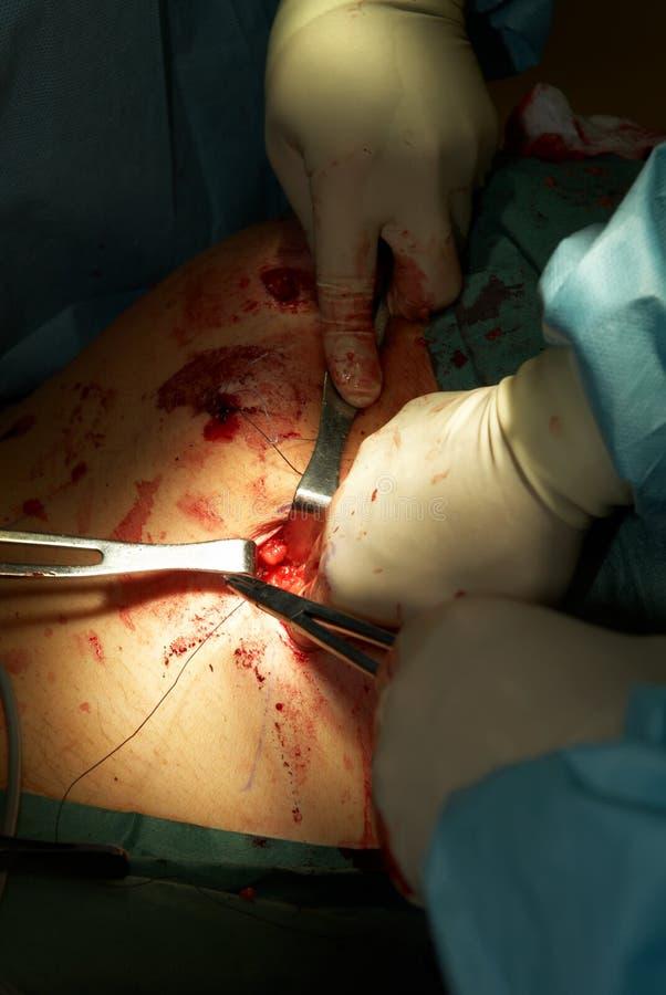 Operación de la cirugía de Laparoscopic fotos de archivo libres de regalías