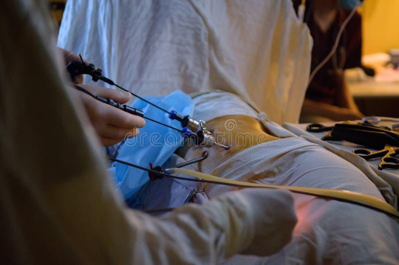 Operación de la cirugía de Laparoscopic fotos de archivo