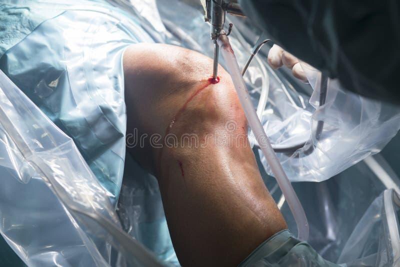 Operación del hospital de la cirugía de la rodilla imagen de archivo