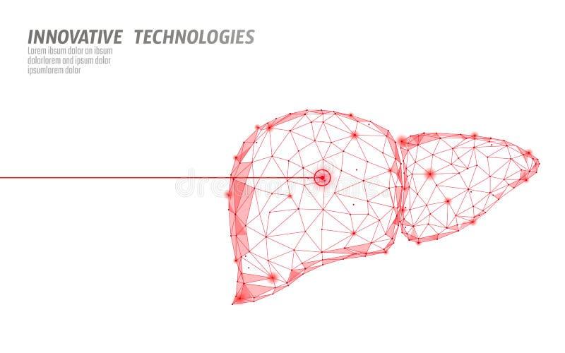 Operación humana de la cirugía del laser del hígado bajo polivinílica Área dolorosa del tratamiento de la droga de la enfermedad  ilustración del vector