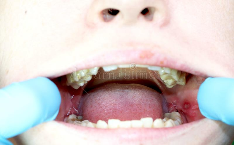 Operacji usunięcie mądrość zęby - eights Zaszywanie, postoperative okres fotografia stock