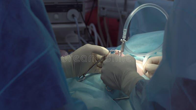 Operation genom att använda laparoscopic utrustning Kirurglag Sjukhus royaltyfria bilder