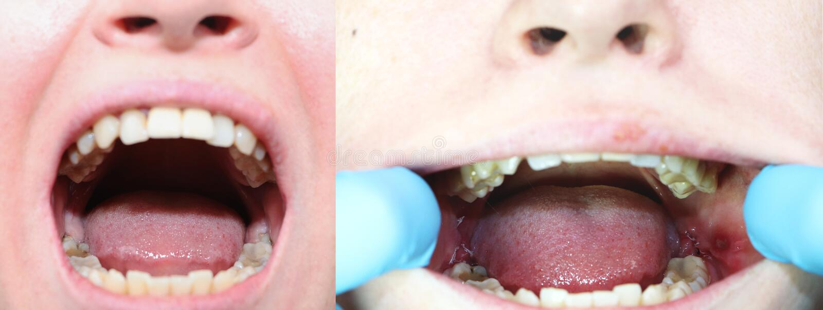 Before and after the operation to remove wisdom teeth - eights. Close-up of wisdom teeth and stitches after removing them. Close-up of wisdom teeth and stitches royalty free stock images