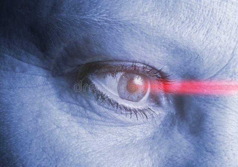Operazione del laser dell'occhio fotografie stock