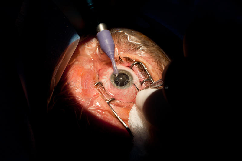 Ophthalmologic kirurgi för starr arkivbild