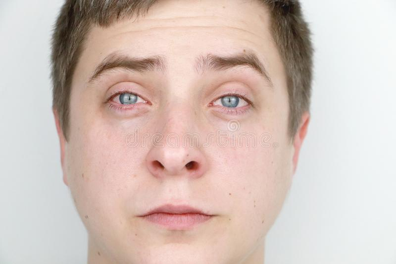 Ophthalmology, allergies, tearing. Portrait of a man who is crying stock image