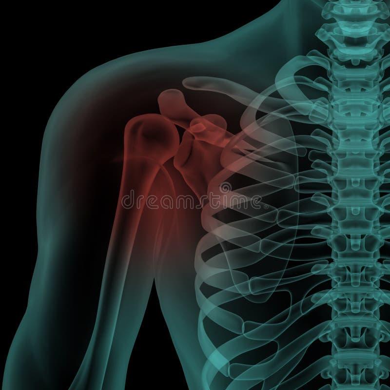 Opinião dianteira do raio X do ombro doloroso humano ilustração do vetor