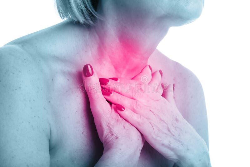 Opinião do close up a mulher adulta com a glândula de tiroide isolada no fundo branco imagem de stock