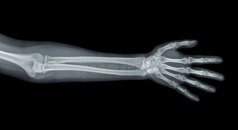 Opinião do raio X da mão foto de stock royalty free