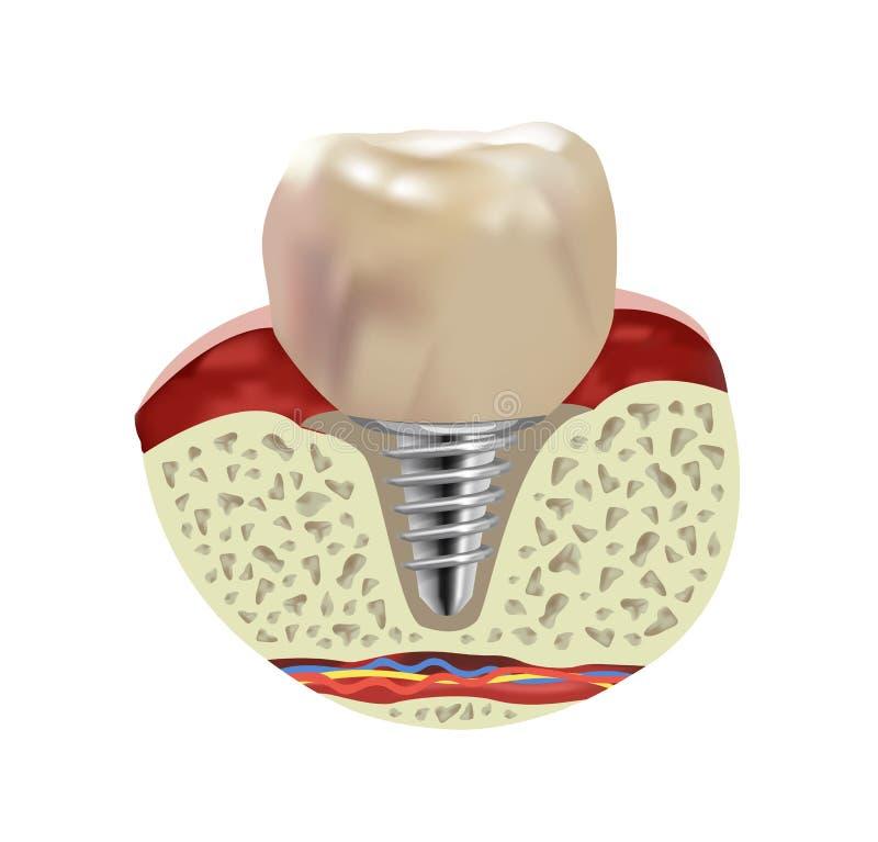 Opinião realística de seção transversal do implante humano artificial do dente ilustração royalty free