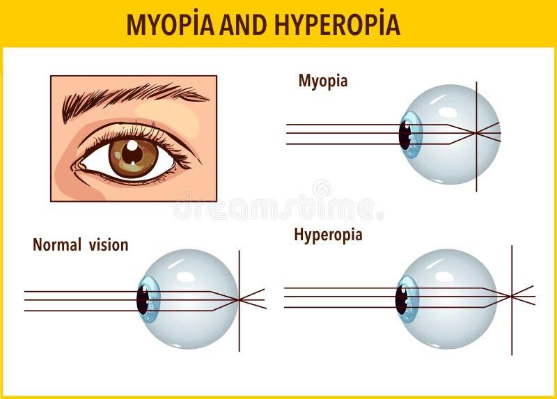 hogyan kezelik a myopia és a hyperopia