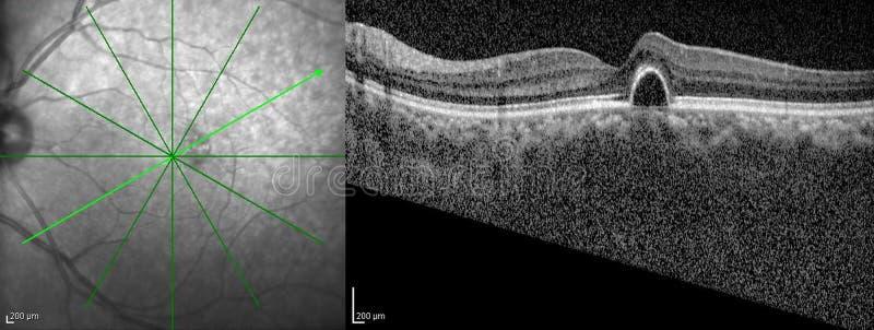 Optisk sammanhållningTomography arkivfoton