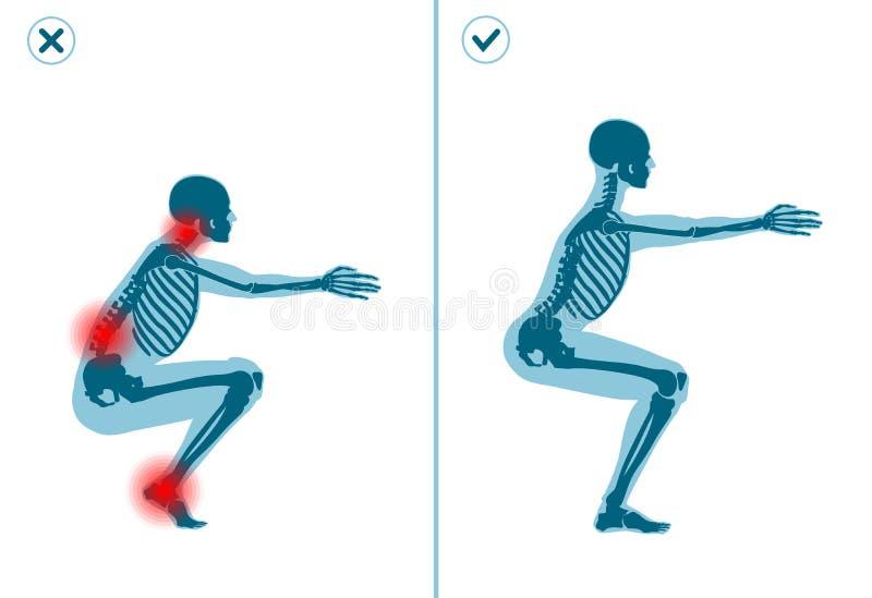 Orätt och satt övning för korrekt luft Höger utförandeteknik av sportgymnastik Gemensamma fel i sportgenomkörare stock illustrationer