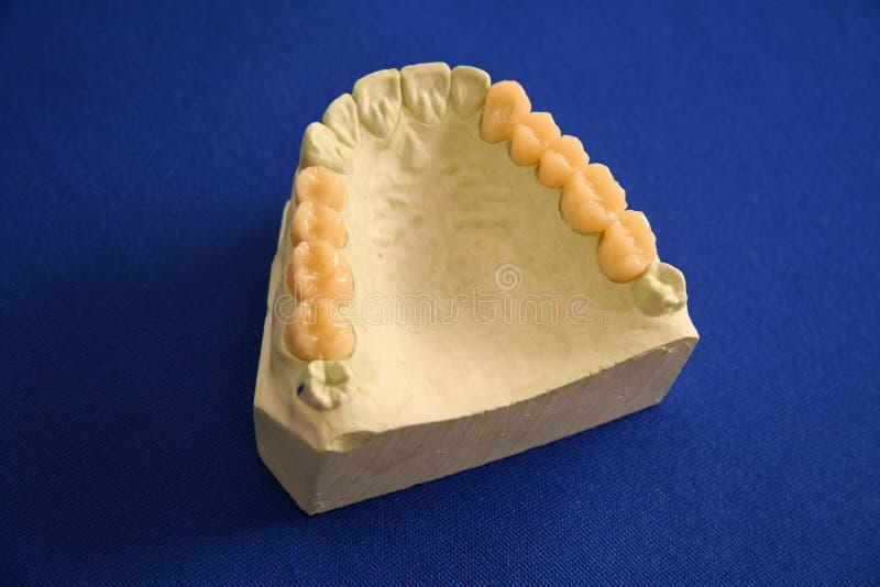 Oral Health Teeth Mold royalty free stock photo