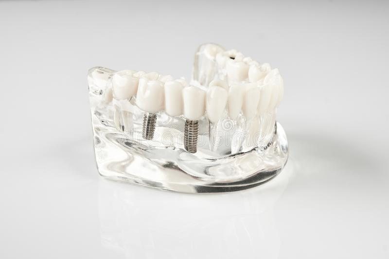 Oral healthcare, education concept. Dental tooth dentistry student learning teaching model showing teeth, roots, gums, gum disease, tooth decay and plaque stock photos