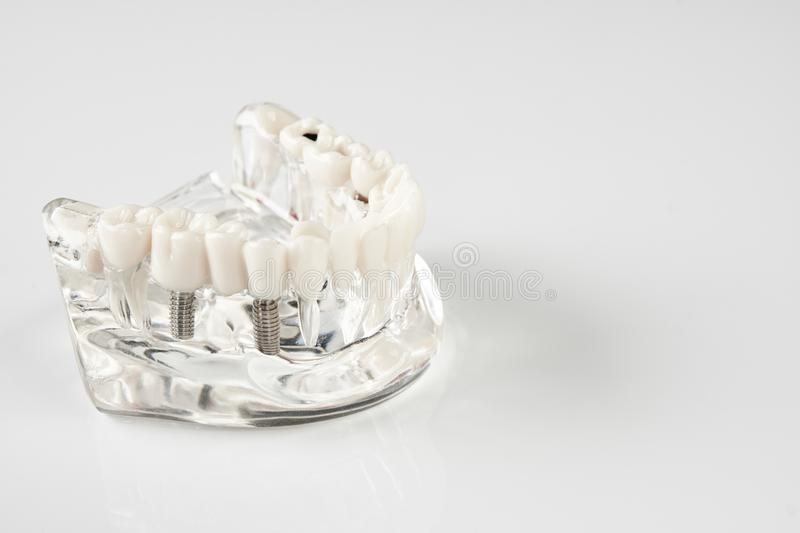 Oral healthcare, education concept. Dental tooth dentistry student learning teaching model showing teeth, roots, gums, gum disease, tooth decay and plaque stock photography