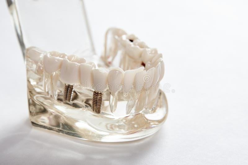 Dental tooth dentistry student learning teaching model showing teeth royalty free stock images