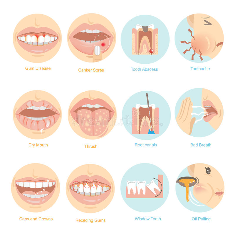 Oral problems. Top twelve issues for Oral Care. illustration royalty free illustration