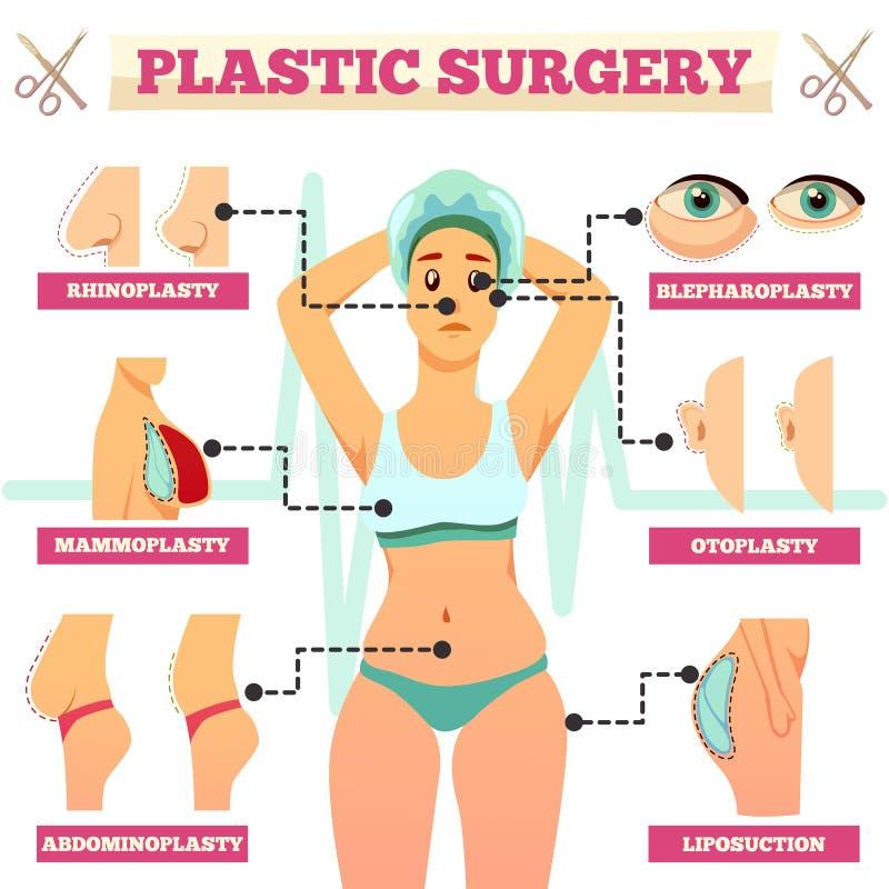 Organigrama ortogonal de la cirugía plástica stock de ilustración