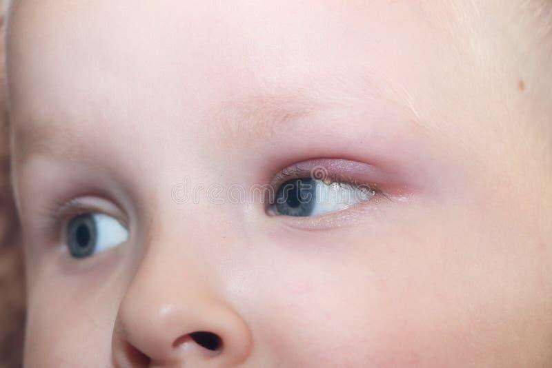 Orge, hordeolum dans un enfant Poche purulente sur l'oeil du garçon photographie stock