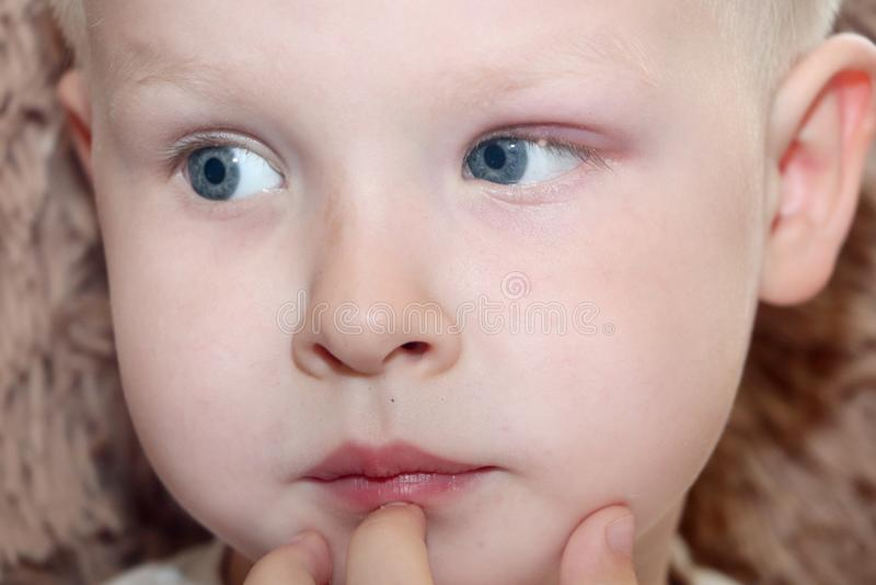 Orge, hordeolum dans un enfant Poche purulente sur l'oeil du garçon photographie stock libre de droits
