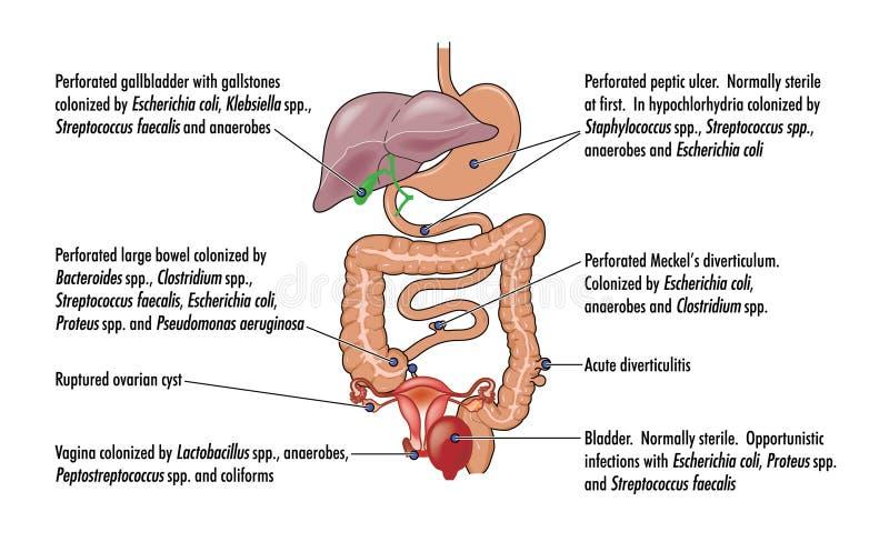 Orsaker av bukhinneinflammation vektor illustrationer