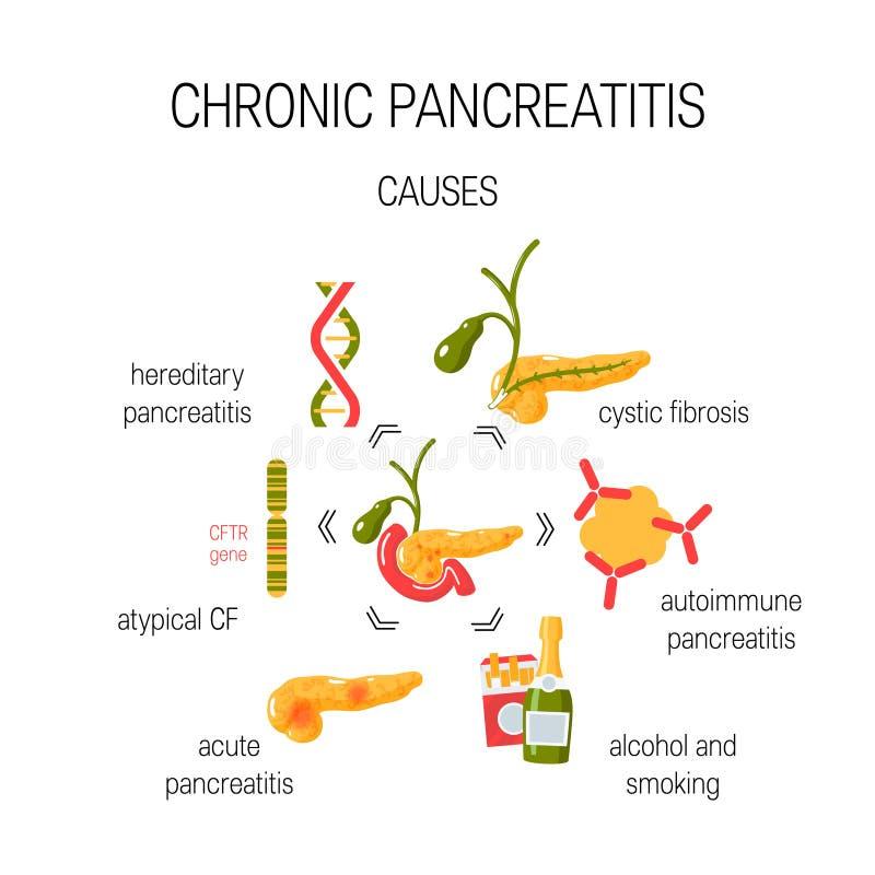 Orsaker av det kroniska pancreatitisbegreppet också vektor för coreldrawillustration royaltyfri illustrationer