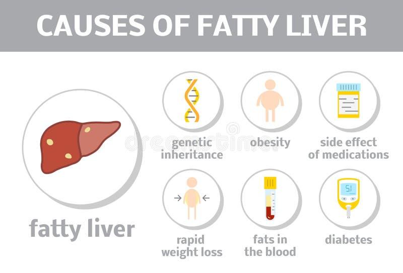 Orsaker av fettig lever stock illustrationer