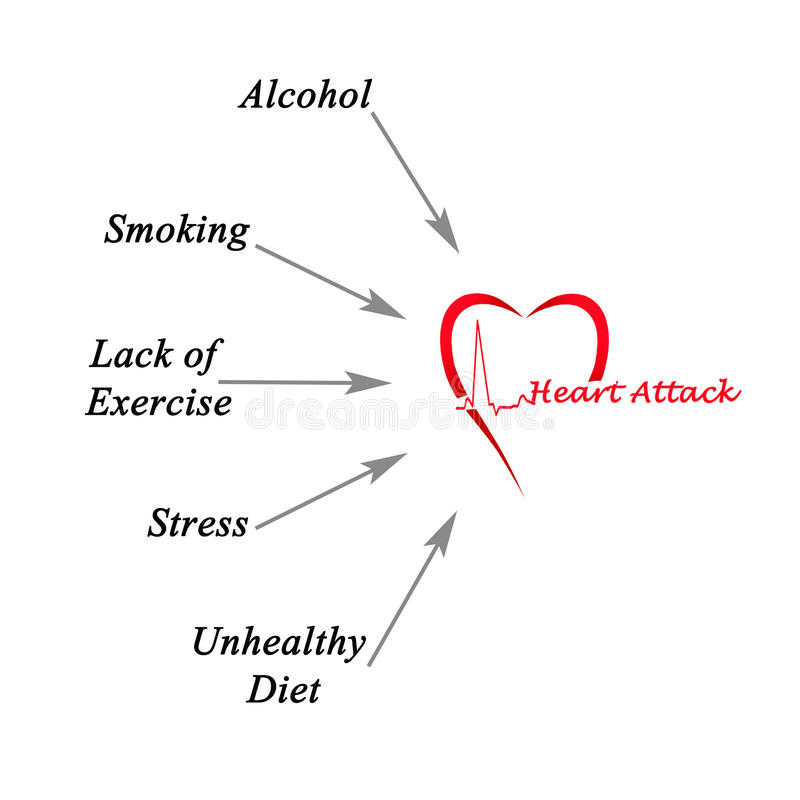 Orsaker av hjärtinfarkt stock illustrationer