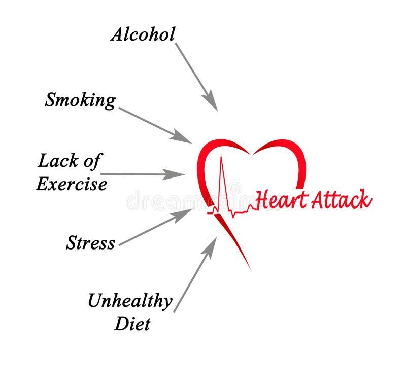 Orsaker av hjärtinfarkt royaltyfri illustrationer