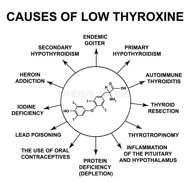 Orsaker av låg thyroxine Formel för thyroxine för sköldkörtelhormon kemisk molekylär Infographics Vektorillustration p? royaltyfri illustrationer