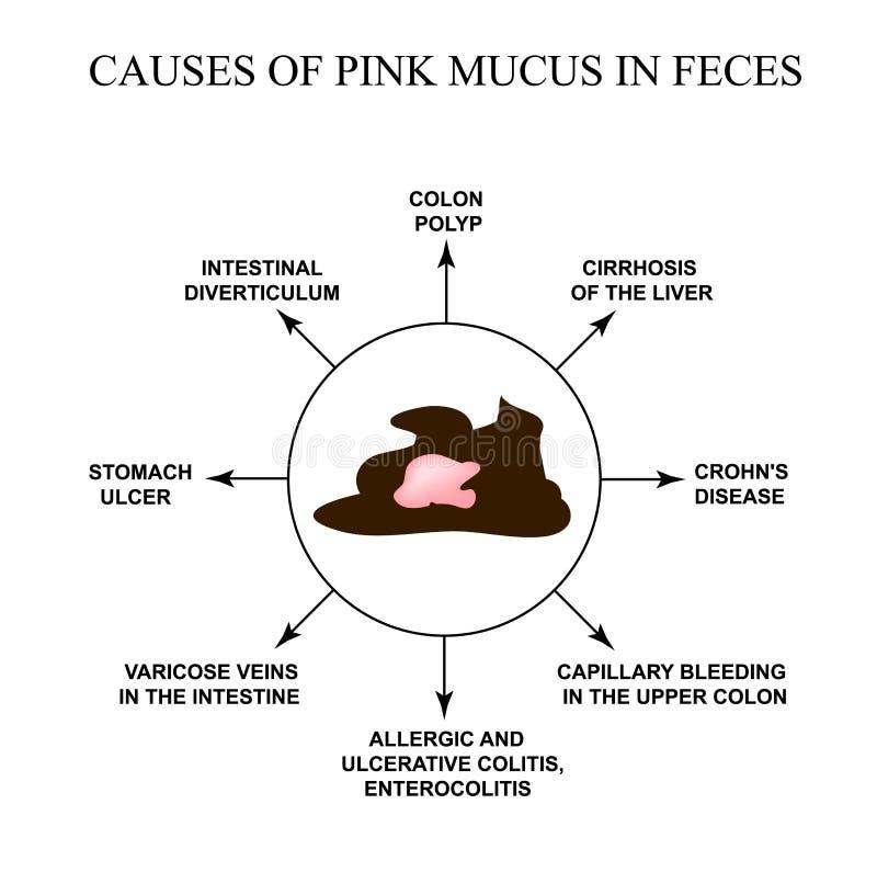 Orsaker av rosa slem i avföring sjukdomar av det gastrointestinala omr?det Infographics Vektorillustration p? isolerat vektor illustrationer