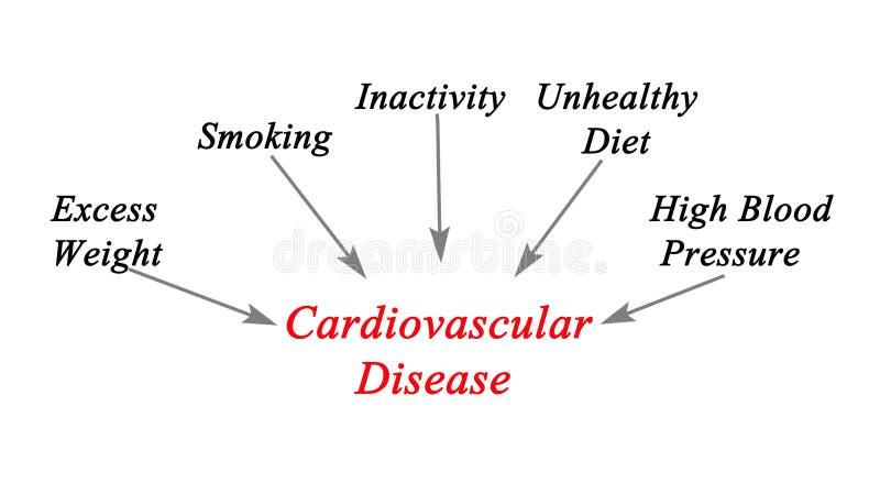 Orsaker till den kardiovaskulära sjukdomen royaltyfri illustrationer