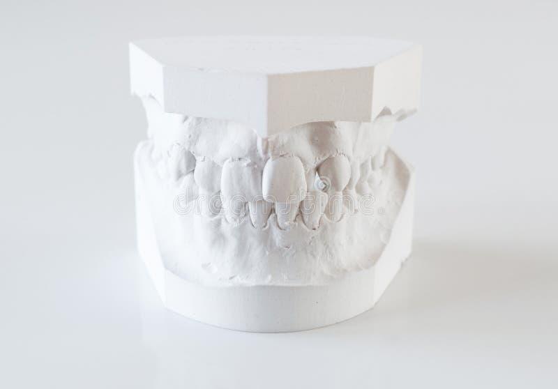 Orthodontic φόρμες στοκ φωτογραφία με δικαίωμα ελεύθερης χρήσης